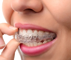 Close-up of woman taking out aligner