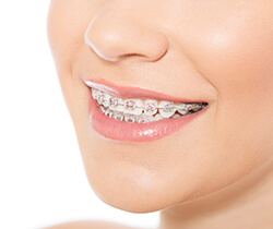 Closeup of smile with metal bracket and wire braces