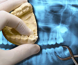 X-ray and model of wisdom teeth