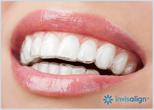 Closeup of patient wearing Invisalign aligners