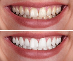 close up of smile before and after teeth whitening